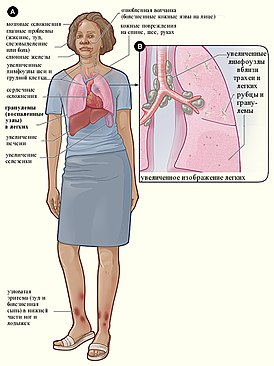 Sarcoidosis signs and symptoms(rus).jpg