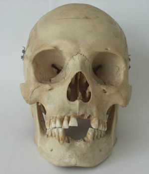 Transcendental anatomy - The osteology of the human skull was an important theory for transcendental anatomists