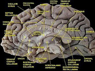 Cingulate sulcus - Image: Slide 2ZEN