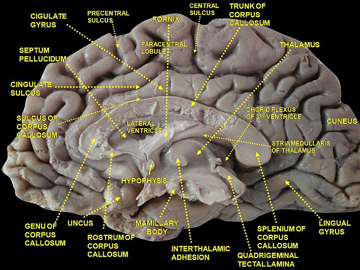 Cingulate Sulcus Eanswers