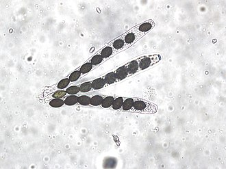 Ascus - There are 8 ascospores in each ascus of Sordaria fimicola.