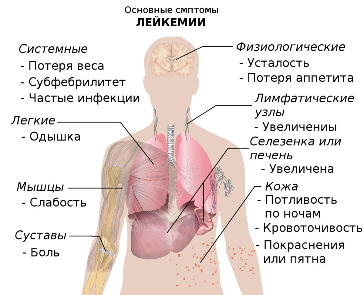 Диагностика острых лейкозов.Как диагностировать лейкоз.