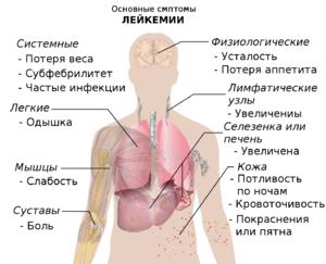 полицитемия что это за болезнь