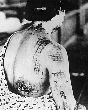 Effects of nuclear explosions - Burns visible on a woman in Hiroshima during the blast. Darker colors of her kimono at the time of detonation correspond to clearly visible burns on the skin which touched parts of the garment exposed to thermal radiation. Since kimonos are not form-fitting attire, some parts not directly touching her skin are visible as breaks in the pattern, and the tighter-fitting areas approaching the waistline have a much more well-defined pattern.