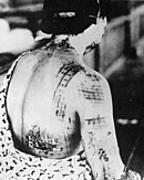 A woman's back, with chequered-shaped burns