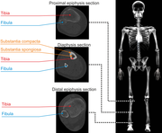 Computed tomography, Tibia, Modulus of Elasticity, anatomy