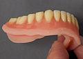 Totale Unterkieferprothese mit weichbleibender Unterfütterung 2012 PD 5.jpg