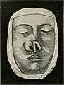Traité de chirurgie (1897) (14595430958).jpg
