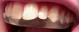 Mouthguard - Vacuum form mouthguard made from an impression using dental alginate.