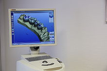 Cerec 3D Wikipedia