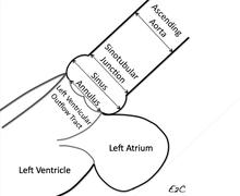 aorta wikipedia
