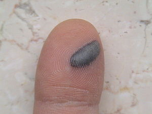 Blood blister on 1st finger of left hand. This...