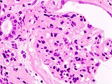 Diabetic glomerulosclerosis (1) HE.jpg