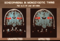 Enlarged lateral ventricles in schizophrenia.png