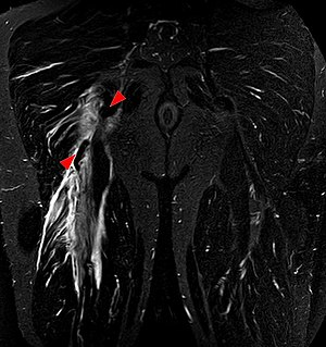 Hamstring - Tear of the hamstrings muscles at the ischial tuberosity seen on MRI (coronal STIR). The arrowheads indicate the tuber and the retracted tendon stump. Significant bleeding around and into the muscles.