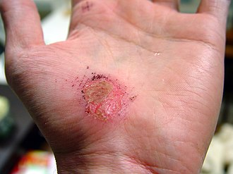 Wound healing - Image: Hand Abrasion 2 days 22 hours 12 minutes after injury