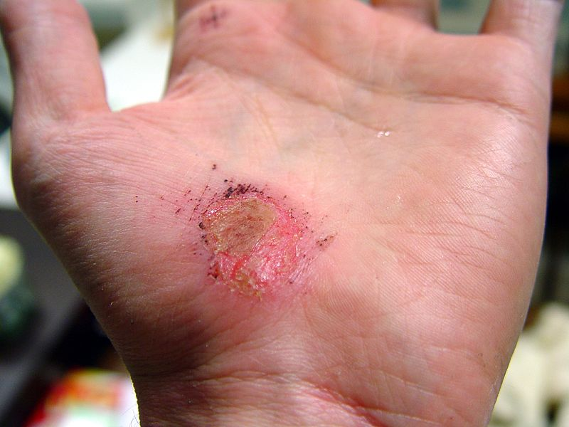 File:Hand Abrasion - 2 days 22 hours 12 minutes after injury.JPG