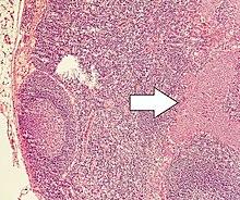 neuroendocrine cancer of the colon