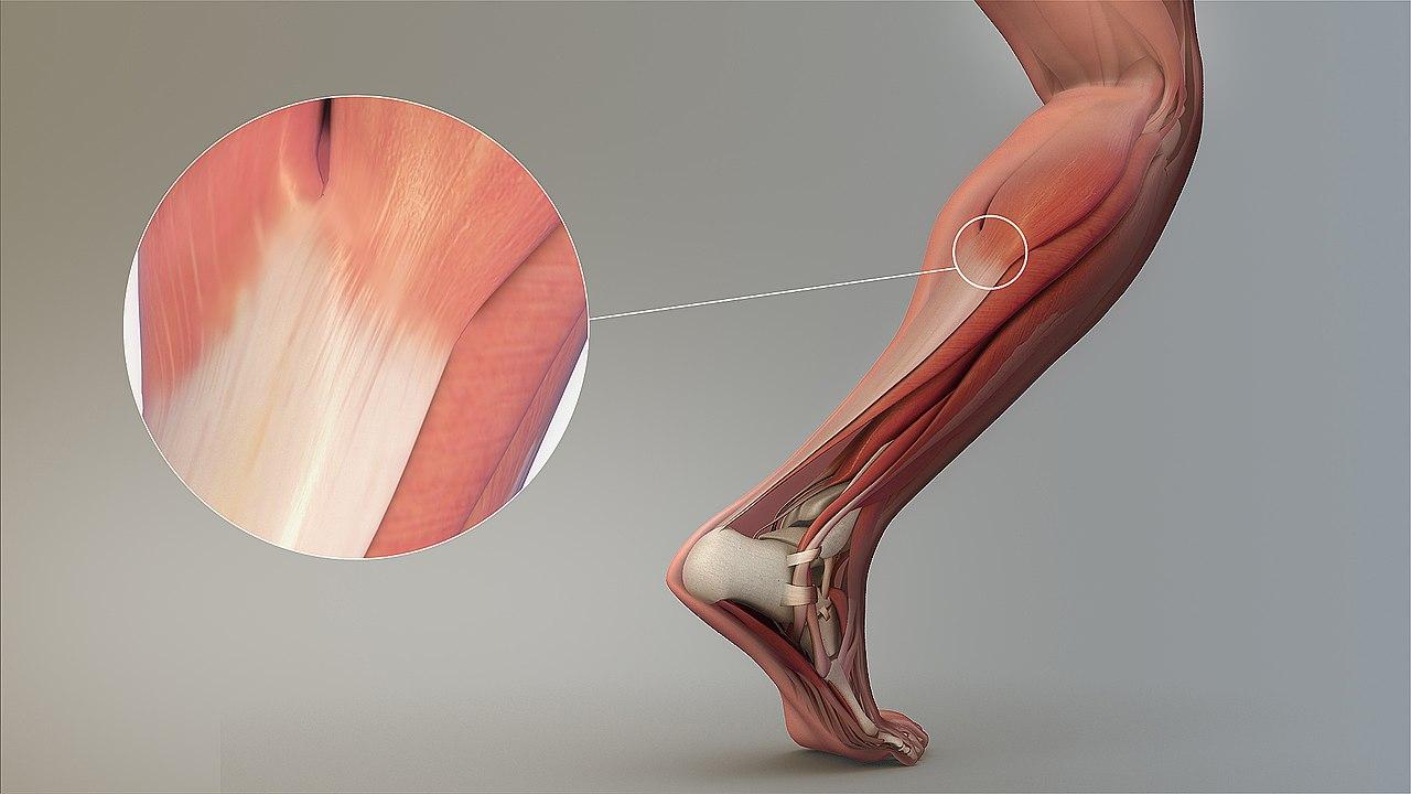 Sehne (Anatomie) - Wikiwand