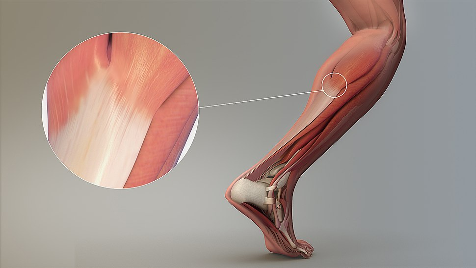 Magnified view of a Tendon