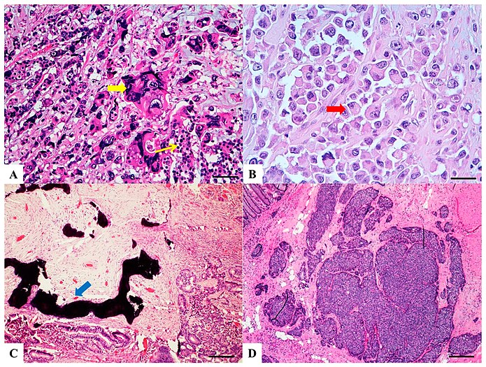 Histopathology Of Colorectal Adenocarcinoma Wikipedia