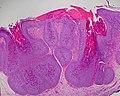 Molluscum Contagiosum 1.jpg