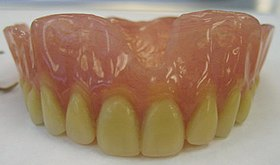 Mr M's Complete Denture2.jpg