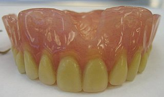 Dentures Prosthetic devices constructed to replace missing teeth