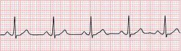 Normal Sinus Rhythm Unlabeled.jpg