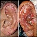 Otomycosis.jpg