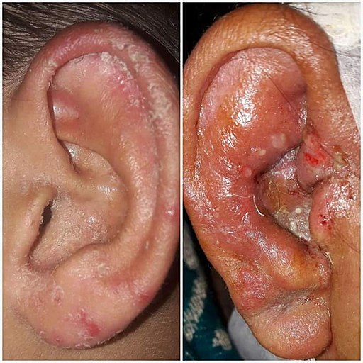 Otomycosis - fungal infection of the outer ear