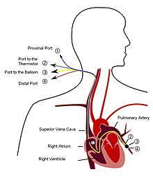 Diagram of Pulmonary artery catheter (PAC)