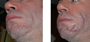 A pair of images showing subject with acne sca...