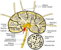 Schematic of lymph node showing lymph sinuses.png