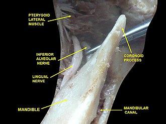 Lingual nerve - Image: Slide 2cec