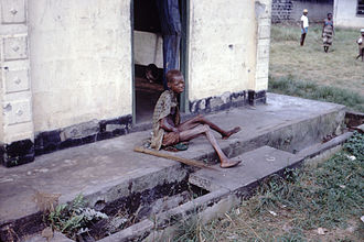 Nigerian Civil War - Severely malnourished woman during the war