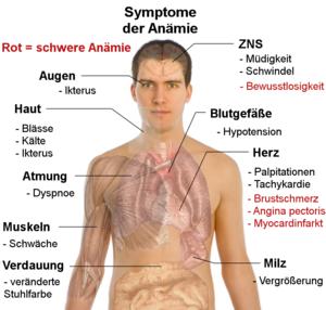 Анемия симптомы +и лечение