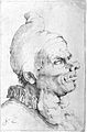 The head of a man with large goitres on his neck. Etching by Wellcome L0023708.jpg
