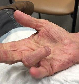 Trigger finger disorder of the finger
