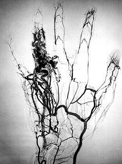 Angioma Wikimedia category