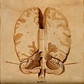 Brain; horizontal section. Watercolour after(?) W.H. Lizars, Wellcome V0008413.jpg