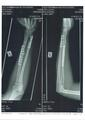 Broken left forearm (Radius Ulna).pdf