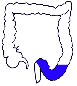 Sigmoid colon - Drawing of colon seen from front (sigmoid colon coloured blue)