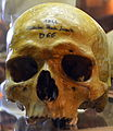 Crâne d'Anthelme Perrin au musée Testut-Latarjet - 2.JPG