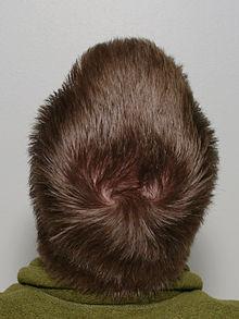 Как изменить направление роста волос на голове