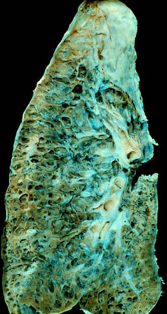Anatomical pathology - Gross examination: appearance of the cut surface of a lung showing the honeycomb pattern of end-stage pulmonary fibrosis.