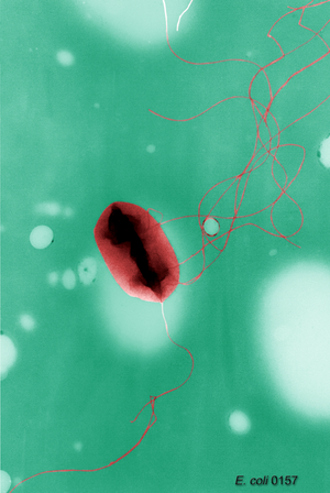 Epigenetics - Escherichia coli bacteria