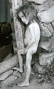 [Image: 180px-Girl_affected_by_famine_in_Bugurus...-_1921.jpg]