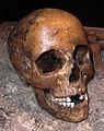 Hallonflickans kranium 9976.jpg