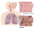 Health lungs and copd ru.png